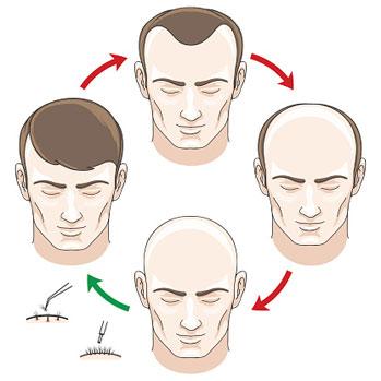 Glatze, Geheimratsecken und volles Haar - Die Methoden der Haartransplantation